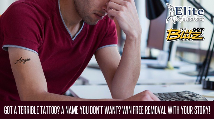 Win Free Tattoo Removal